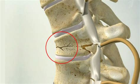 Compression Fracture Of The Spine In Children Symptoms. On Line Associates Degree Attorneys In Austin. Philips Heartstart M5066a Pa Cable Companies. Best European Mba Programs Payday Loan Offers. Minimally Invasive Spinal Surgery. Slab Leaks Covered By Homeowners Insurance. Auto Insurance For Teenagers. Universities That Offer Counseling Degrees. Garage Door Repair West Palm Beach Fl