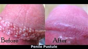 Pearly Penile Papules Home Treatments - YouTube