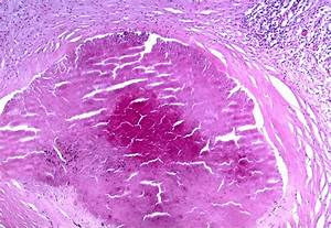 Histoplasmosis definition/meaning