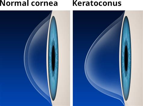 10 Keratoconus Treatments - Plus Causes, Symptoms