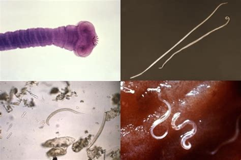 sintomas  podem indicar vermes