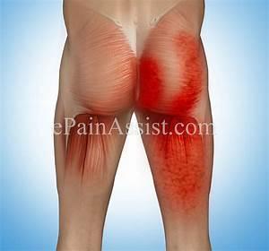 Myofascial Pain In Buttock Muscles