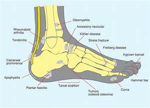 Foot Pain Diagnosis Chart