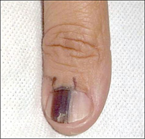 nail bed melanoma subungual melanoma pictures symptoms and treatment