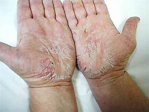 Тербинафин и псориаз