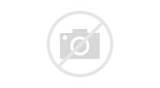 Гомеопатические препараты при лечении артроза
