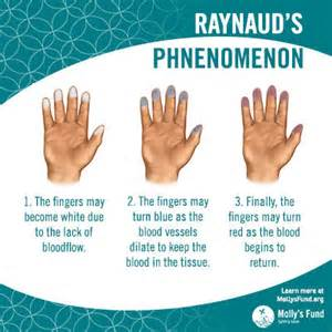 Raynaud's Syndrome with Connective Tissue Disease