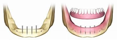 Dental Implant Implants Dentadura Blade Denture Implantologia