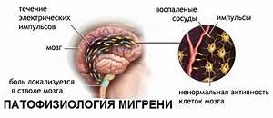Спазм сосудов головного мозга из-за остеохондроза лечение