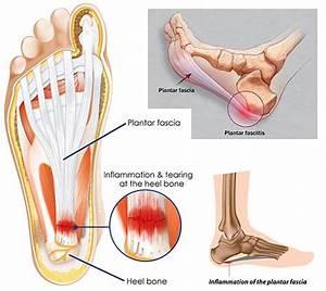 Heel Pain Treatment Specialist  U00b7 2018 Top Foot Doctor