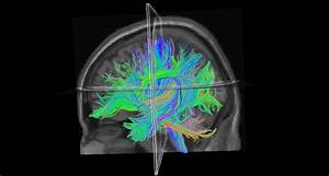 Faulty Brain Wiring May Contribute To Dyslexia