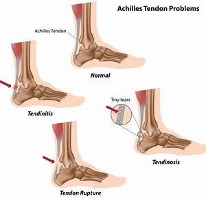 7 Most Common Injuries In Running Marathons  U2013 Know How To
