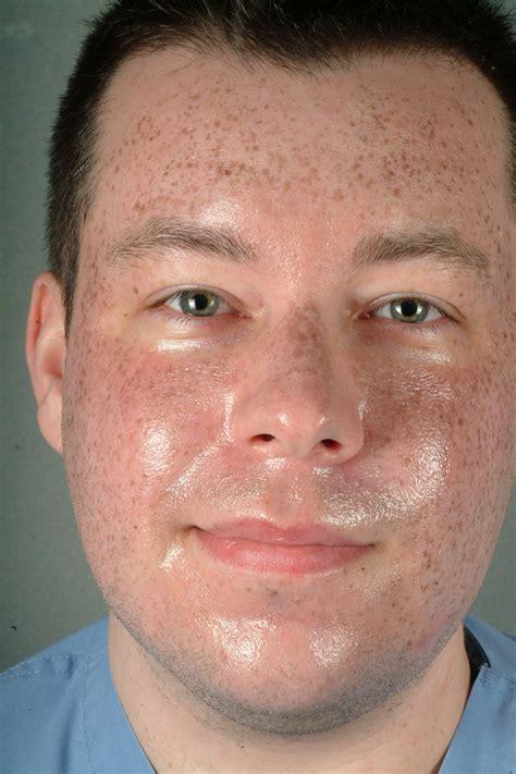 chemical peels atlanta skin rejuvenation metro atlanta