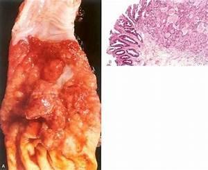 Print Path  Gi Esophagus And Stomach Flashcards