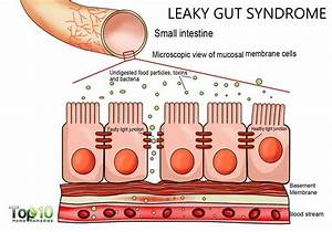 Signs And Symptoms Of Leaky Gut Syndrome You Must Know