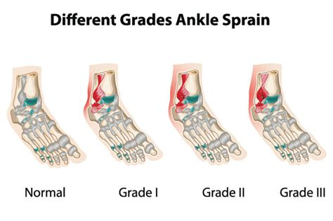ankle injuries family podiatry  maryland