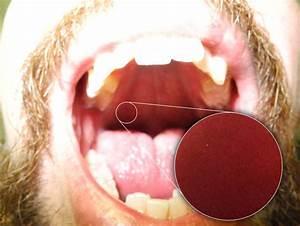 Digital Camera  U2013 Dslr  U2013 Oral Cavity  U2013 Ttac