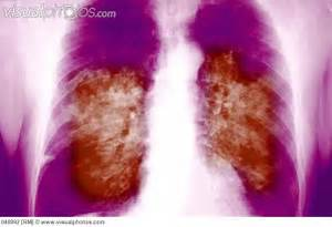 ray_showing_severe_acute_respiratory_syndrome_sars_a_viral_respiratory ... Severe Acute Respiratory Syndrome (SARS)