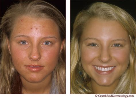 accutane for mild acne before and after online and mail order pharmacies
