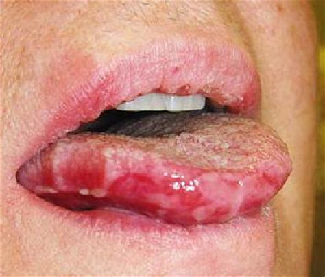 Nasal and Oral Mucosal Ulcers - Now@NEJM Now@NEJM