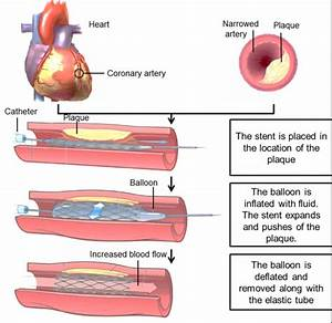Angioplasty With Stent Implantation Procedure