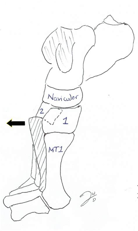 Lisfranc injury indicates disruption between the base of the 2nd metatarsal and the mechanism of injury: LISFRANC INJURIES | Sport Med School