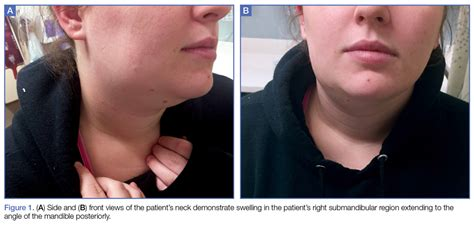Submandibular Gland Swollen Neck