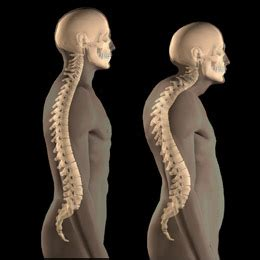 crossed syndromes manchester bedford myoskeletal llc