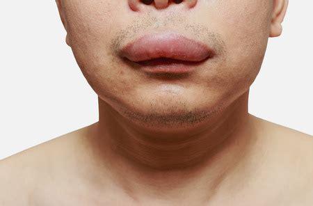 das quincke oedem tritt  schleimhaeuten im mundbereich auf