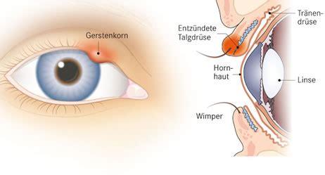 gerstenkorn symptome apotheken umschau