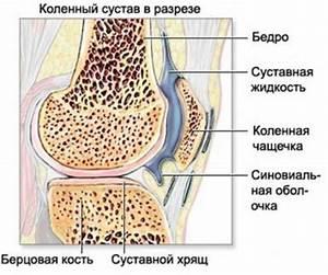 Артрит и артроз в чем разница лечение народными средствами