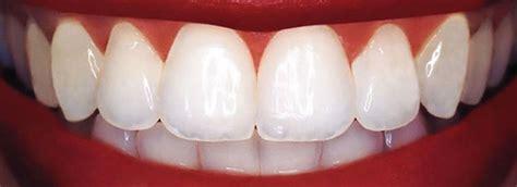 dental bonding  hollywood fl karen gordon dmd