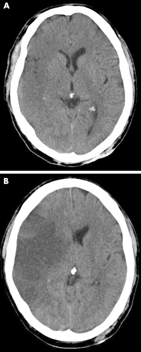 Imaging of acute stroke and transient ischaemic attack
