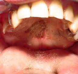 Salivary Gland Disease Salivary Gland Disease