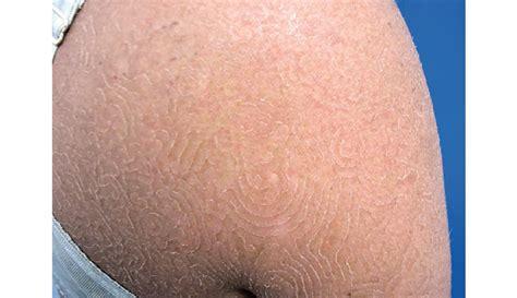 Fungal Infection Causes Swirling Maze Like Rash
