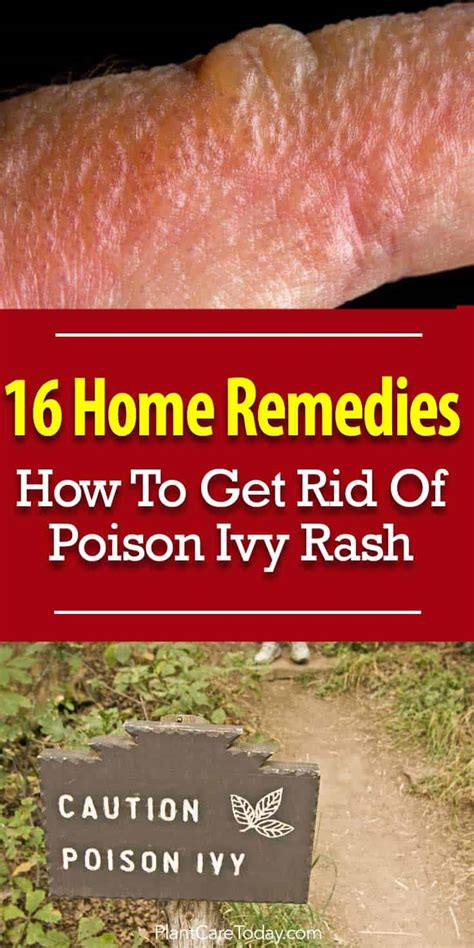 get rid of poison 16 home remedies how to get rid of poison ivy rash
