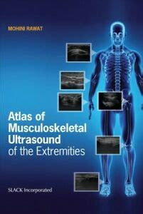 Atlas of Musculoskeletal Ultrasound of the Extremities ...