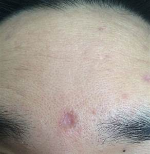 Subcision For These Chicken Pox Scars? - Scar / red mark ...