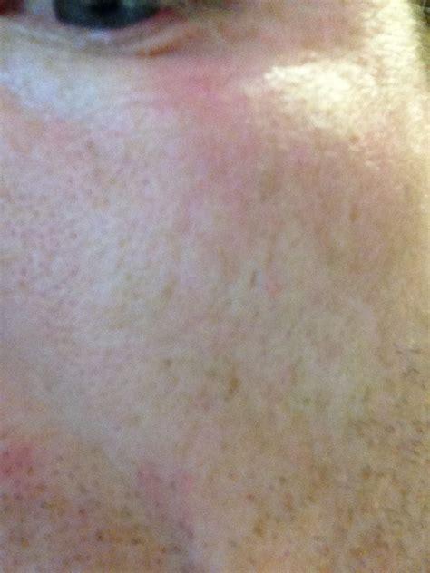 I Have A Small Eczema Ish Looking Rash Below My Left Eye Not