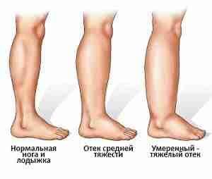Лечение по неумывакину гипертония