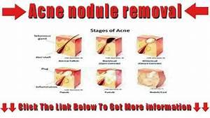 Acne Nodule Removal