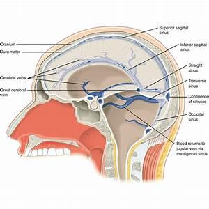 Head and neck vessels | Image | Radiopaedia.org