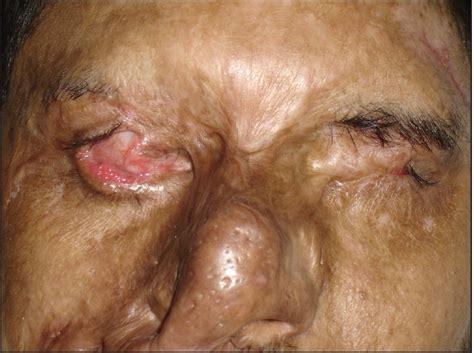 Management of ocular and periocular burns Sarabahi S ...