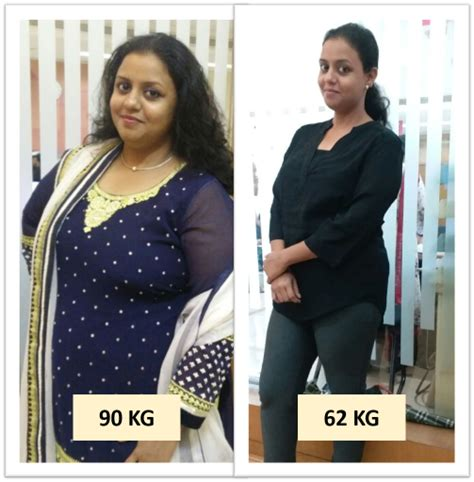 bariatric surgery weight loss surgery  cost