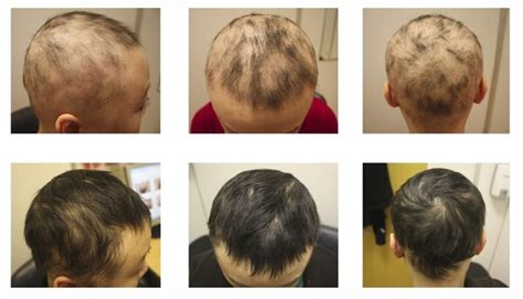Men's Rogaine Male Pattern Baldness