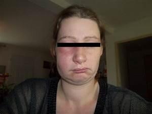 Symptome Dent De Sagesse : douleur dent de sagesse carabiens le forum ~ Maxctalentgroup.com Avis de Voitures