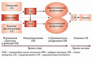 Гипертония и головные боли лечение