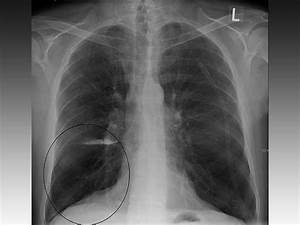 Us Lung Obstruction Rates Steady At About 15