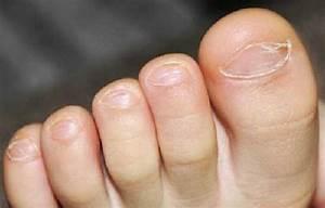 Средства от грибка ногтей на ногтях отзывы