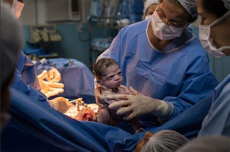 photo shows moment newborn baby girl glares  doctor